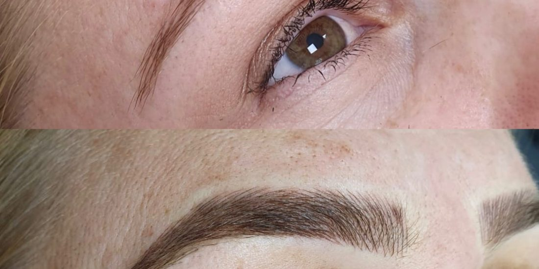 Image of a before and after eyebrow job.