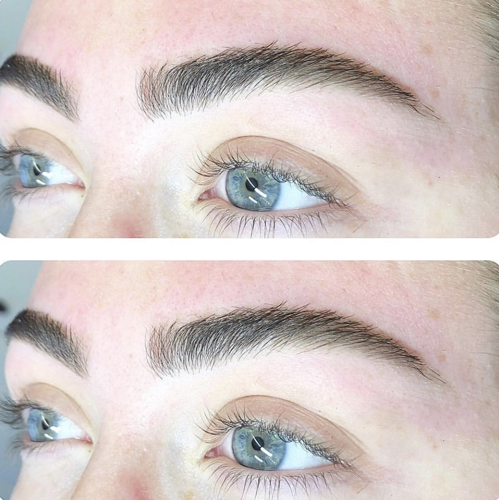 Before and after eyebrow pic.