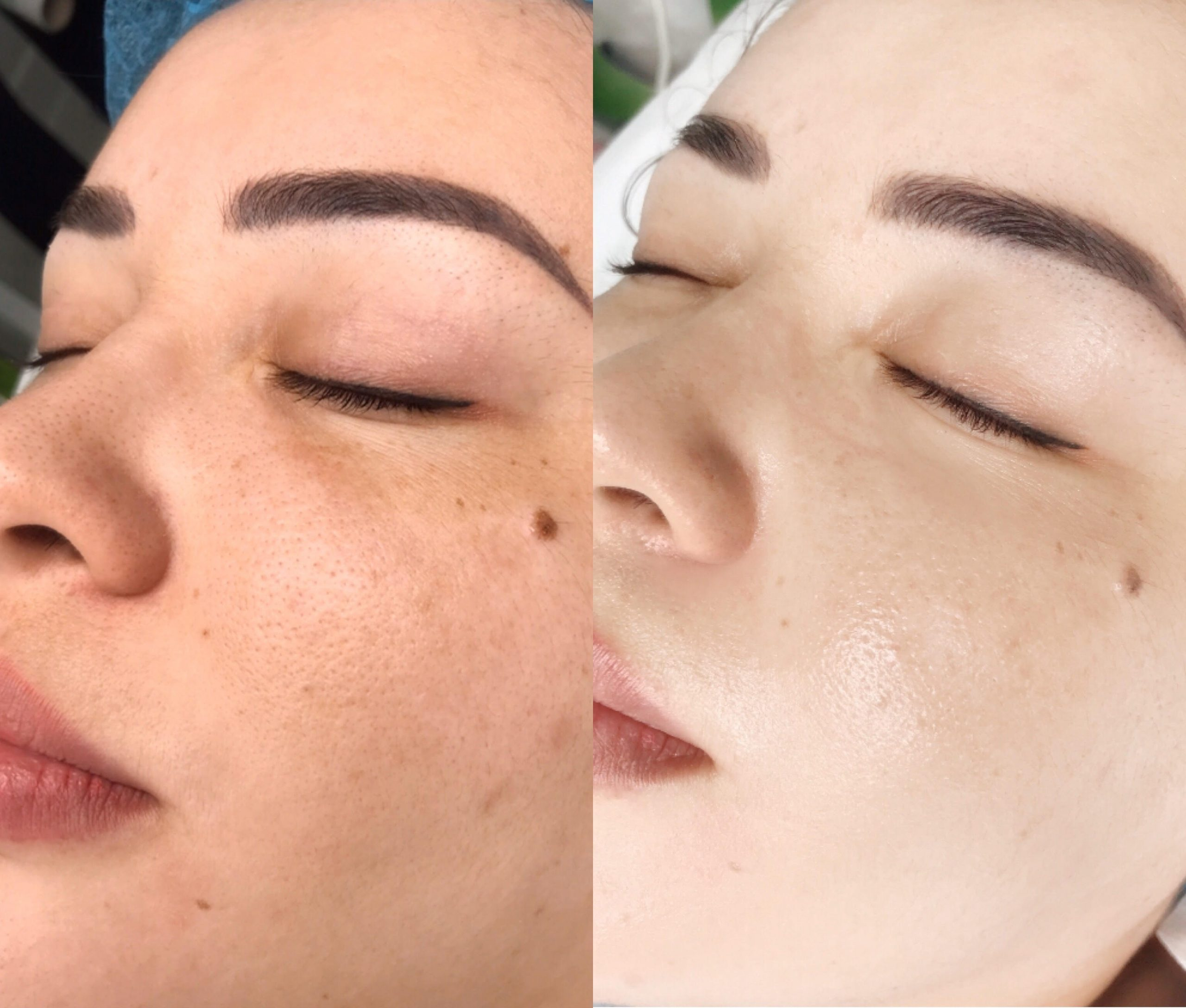 A woman in the process of getting her eyebrows done.